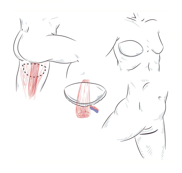 flap image Breast Reconstruction DC