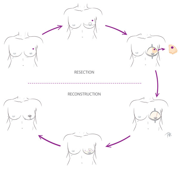 Partial Mastectomy
