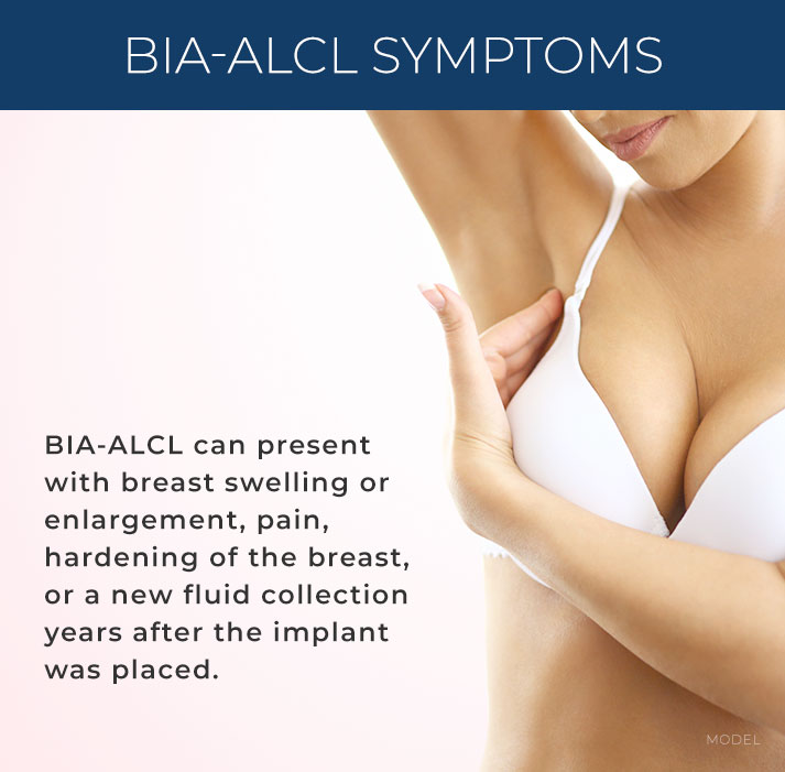 BIA-ALCL can present with breast swelling or enlargement, pain, hardening of the breast, or a new fluid collection years after the implant was placed