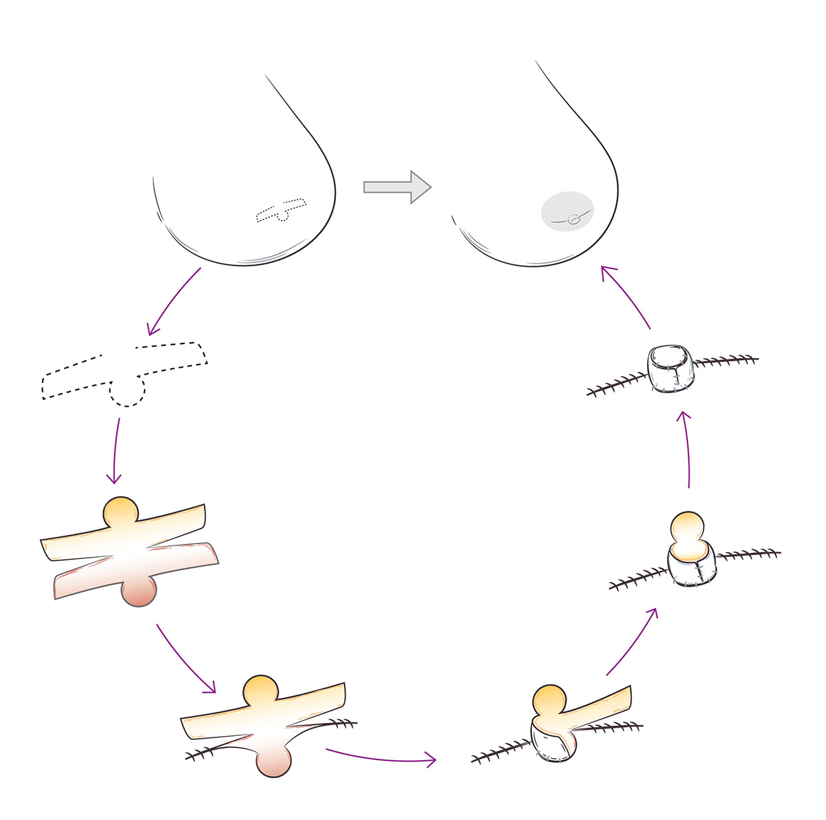Nipple Reconstruction Illustration