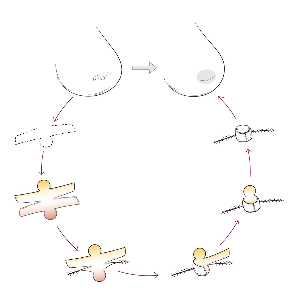 Nipple Reconstruction Illustration