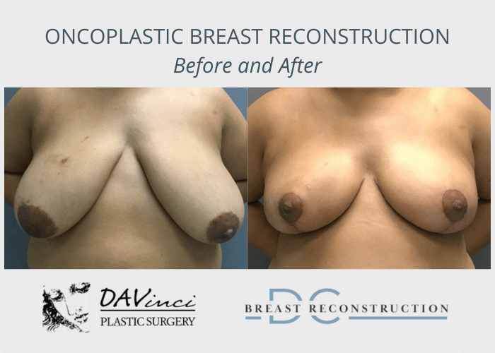 Before and after image showing the results on oncoplastic breast reconstruction performed in Washington DC.